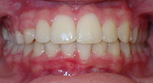 Short Orthodontics